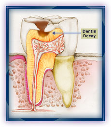 Cavities in Dentin Layer of Tooth